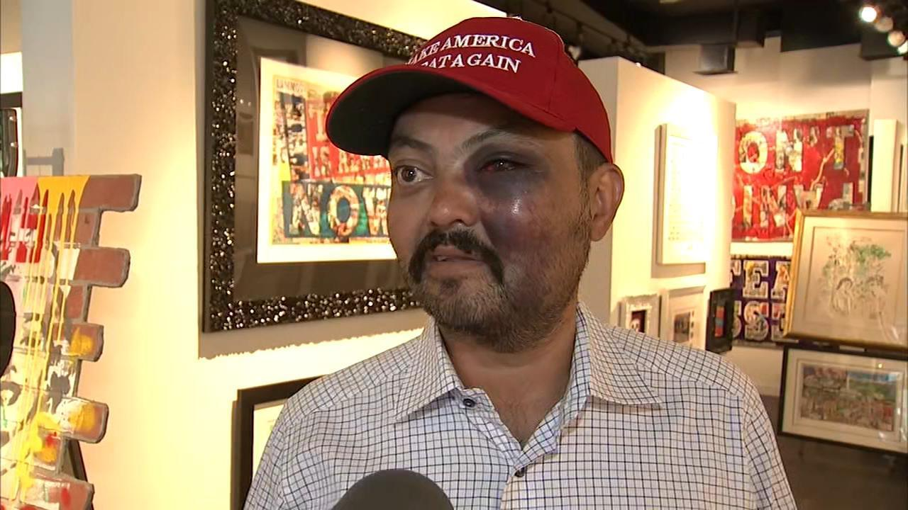 The Violent Left. Man Says He Was Beaten For Wearing MAGA Hat