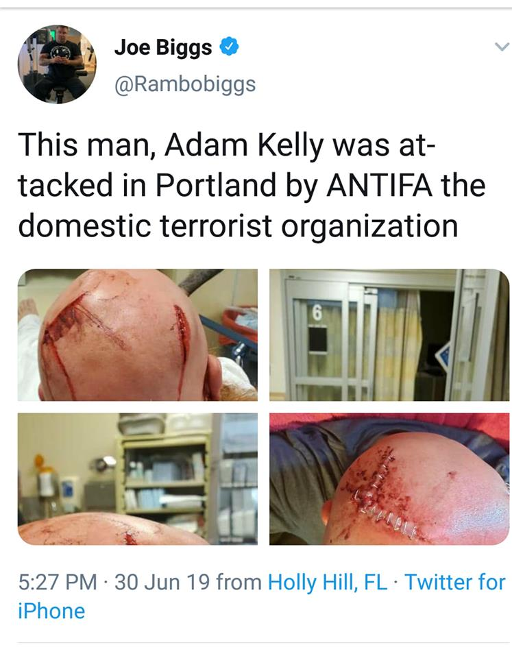 Journalist Attacked By Antifa, Yet The Left Claims Trump Is An Enemy Of The Free Press